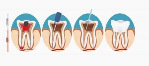 Zahnarztpraxis Dr Michael Wedekin Endotontie